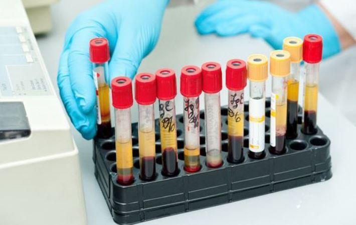 A laborvizsgálati eredmények magyarázata – Közérthetően! Mentsd el, bármikor szükség lehet rá: